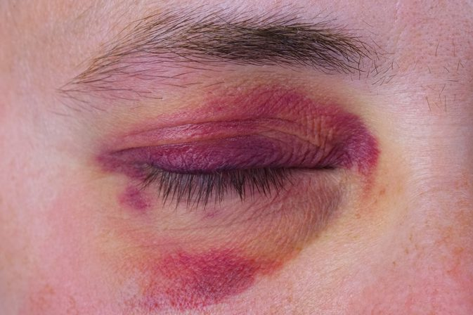 Image result for bruises